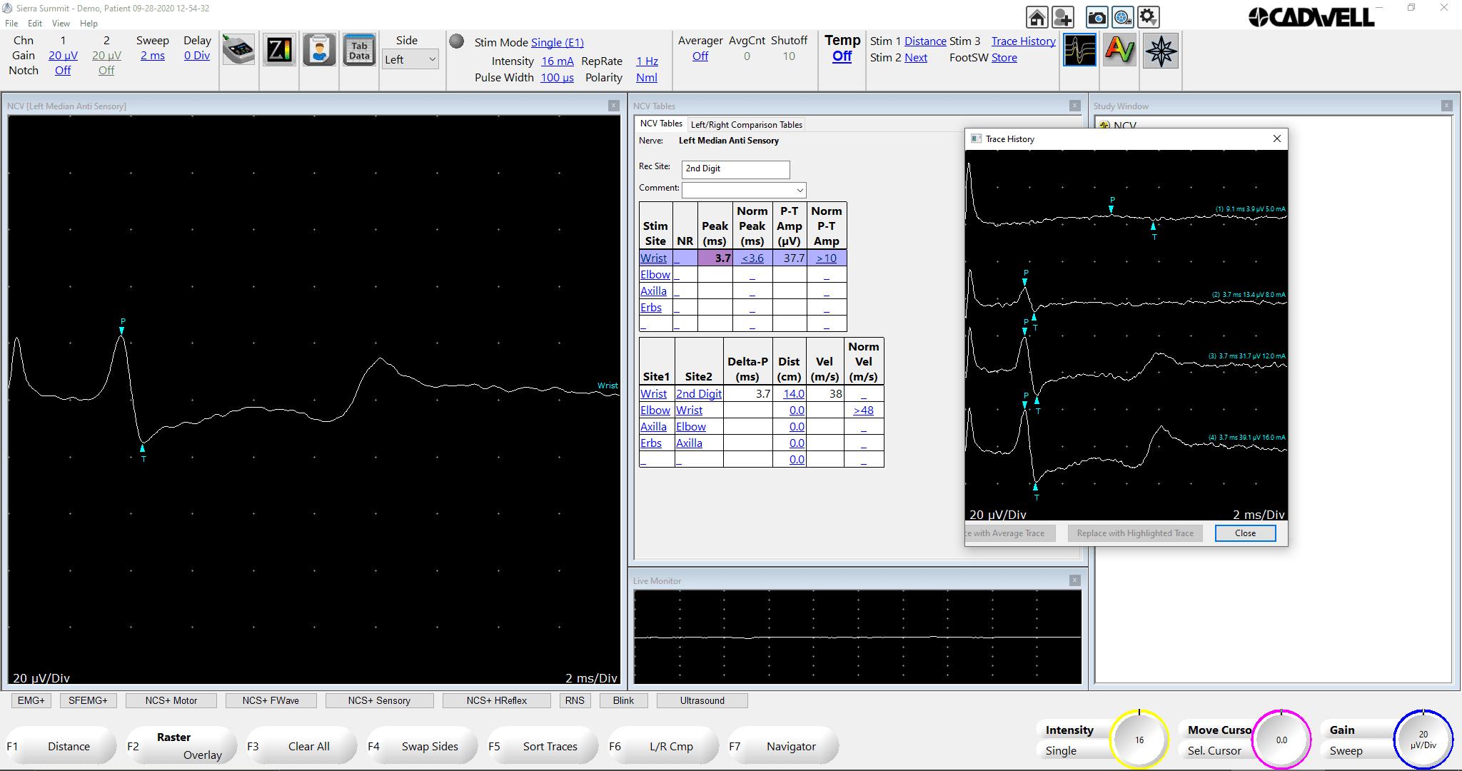 NCV Classic Sensory w trace history